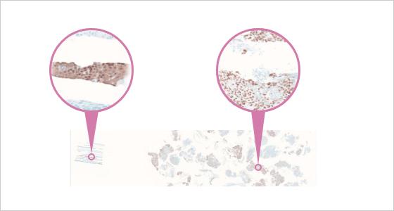 実際の染色例(CK14+P40:肺癌)